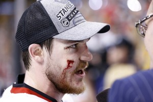 Toughness is one of the many intangibles of Andrew Shaw.