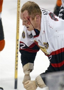 Bloodied Rob Ray after a fight with Donald Brashear. [photo: H. Rumph, Jr.]