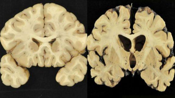 CTE brain scan